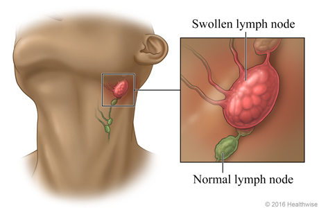 Location of lymph nodes in the neck, with close-up of swollen lymph node and normal lymph node