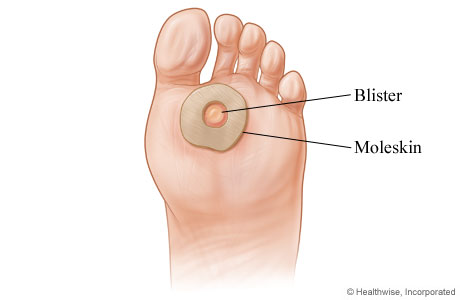 How to treat a blister