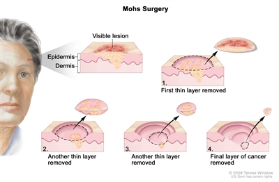 Mohs surgery; drawing shows a patient with skin cancer on the face. The pullout shows a block of skin with cancer in the epidermis (outer layer of the skin) and the dermis (inner layer of the skin). A visible lesion is shown on the skin's surface. Four numbered blocks show the removal of thin layers of the skin one at a time until all the cancer is removed.