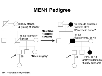 Pedigree showing some of the features of a family with a deleterious MEN1 mutation across four generations, including transmission occurring through paternal lineage. The unaffected male proband is shown as having an affected sister (self-report of neck surgery confirmed upon review of medical records to be hyperparathyroidism diagnosed at age 18 y, parathyroidectomy, and pituitary adenoma), father (self-report of stomach cancer confirmed upon review of medical records to be gastrinoma diagnosed at age 45 y), and paternal grandmother (suspected hyperparathyroidism and/or pancreatic tumor).