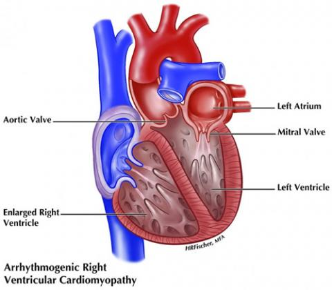 Illustration of ARVC showing enlarged right ventricle of the heart