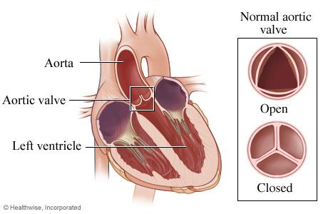 Illustration of heart showing normal aortic valve open and closed