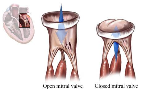 Illustration showing normal mitral valve open and closed