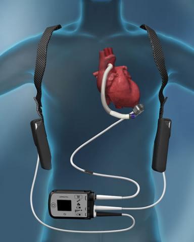 Abbott HeartMate3 LVAD shown on body