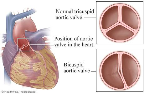 Illustration of bicuspid aortic valve compared to normal tricuspid aortic valve