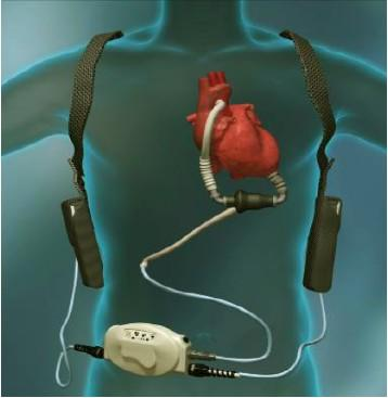 HeartWare® Left Ventricular Assist Devices (LVAD)