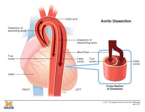 Aortic Dissection Frankel Cardiovascular Center Michigan Medicine
