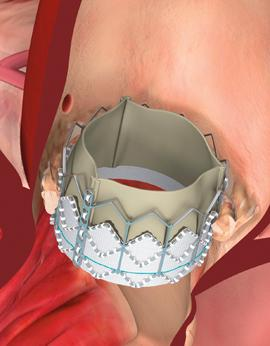 Edwards SAPIEN Heart Valve