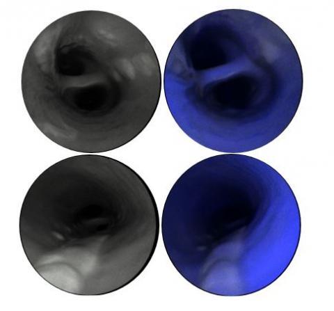 Endoscope image